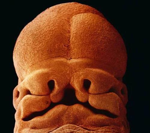 Dupa 5 saptamani, fetusul are 9 mm. Se pot distinge gaurile unde se vor forma ochii,nasul si gura