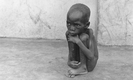 A-starving-Biafran-child