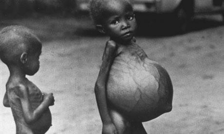 Biafran-CHILDREN-STARVING